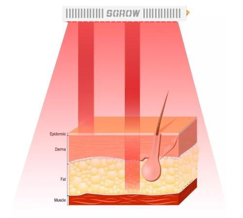 терапия красной световой волны