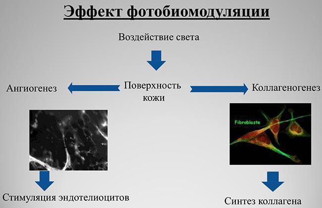 фотобиомодуляция